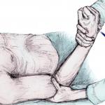 pijnlijke-rotatie-frozen shoulder-schouder