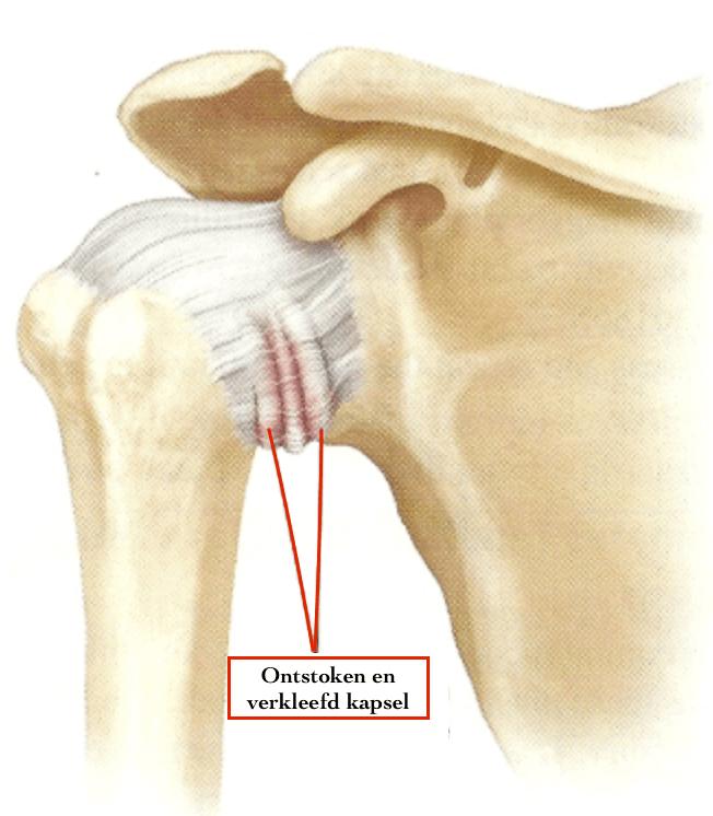 Frozen shoulder: pijnlijk schoudergewricht kan nog maar beperkt bewegen