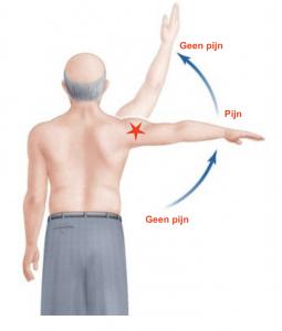 pijn bij slijmbeursontsteking schouder