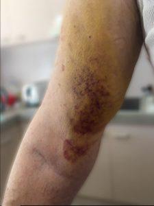 gebroken schouder bloeduitstorting arm fysiotherapie middenweg Amsterdam oost