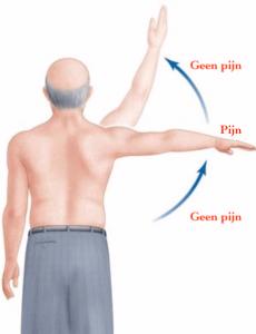 Pijnlijk bewegingstraject bij kalk in de schouderpees
