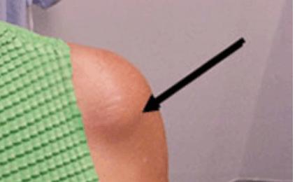 kalk-schouderpees-bult-onder-huid