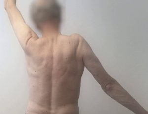 spierzwakte-schouder-gescheurde pees