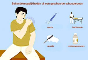 gescheurde-schouderpees- behandeling-fysiotherapie-middenweg-amsterdam-oost-watergraafsmeer