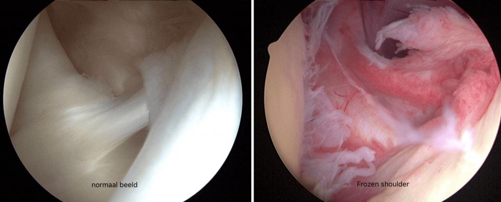 frozen shoulder normale abnormaal beeld