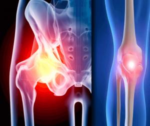 knie heup artrose vergoeding fysiotherapie