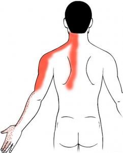 nekpijn-uitstraling-arm