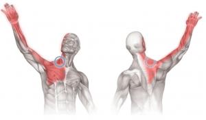 schouderklachten-uitstralende pijn-illustratie