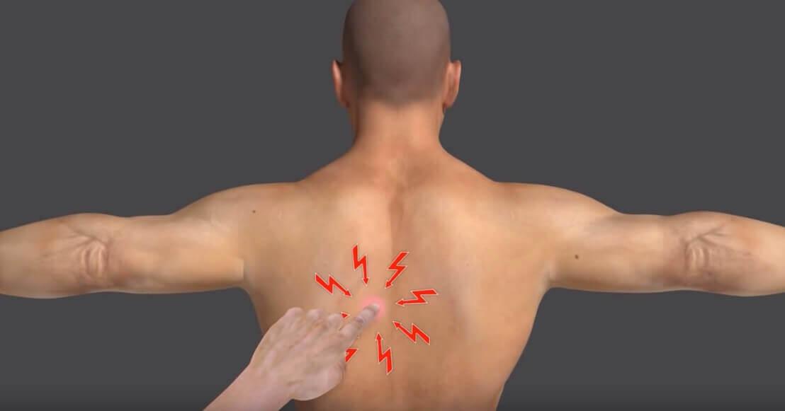 Triggerpoints In De Schouder Fysiotherapie Middenweg