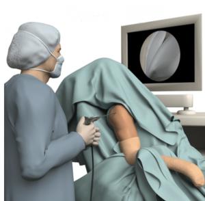 operatie bij herstel na schouder uit de kom