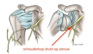 zenuwbeschadiging schouderletsel fysiotherapie middenweg amsterdam oost