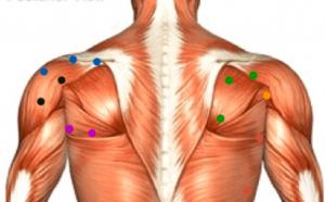 triggerpoint schouder schouderklachten fysiotherapie middenweg amsterdam oost waterraafsmeer
