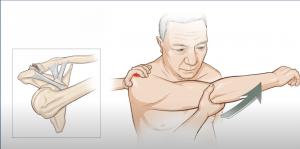 Onderzoektest van het AC gewricht fysiotherapie middenweg amsterdam oost
