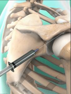 Behandeling versleten schouder injectie schouder fysiotherapie Middenweg Amsterdam Oost