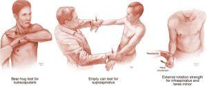 onderzoek schouder fysiotherapie Middenweg