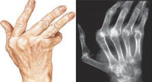 rheumatische hand behandeling peesontsteking Fysiotherapie Middenweg