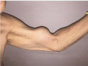 bicepspees gescheurd fysiotherapie Middenweg