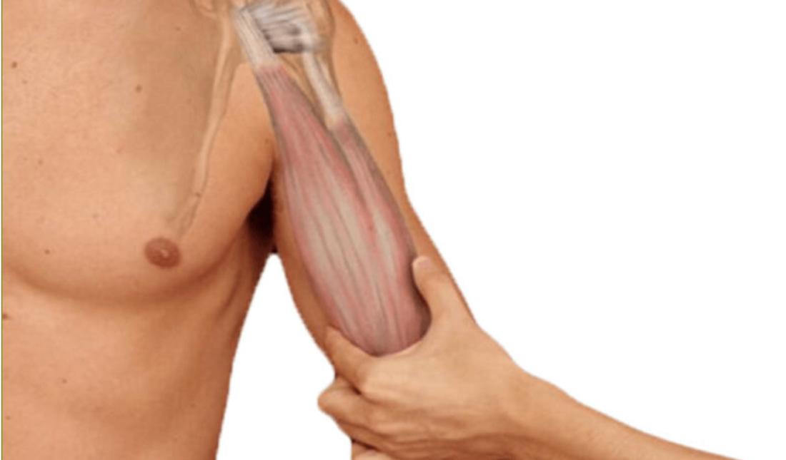 Bicepsklachten bovenarm fysiotherapie Middenweg