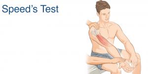 test van bicepspees arm